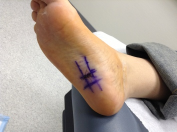 Foot Woes